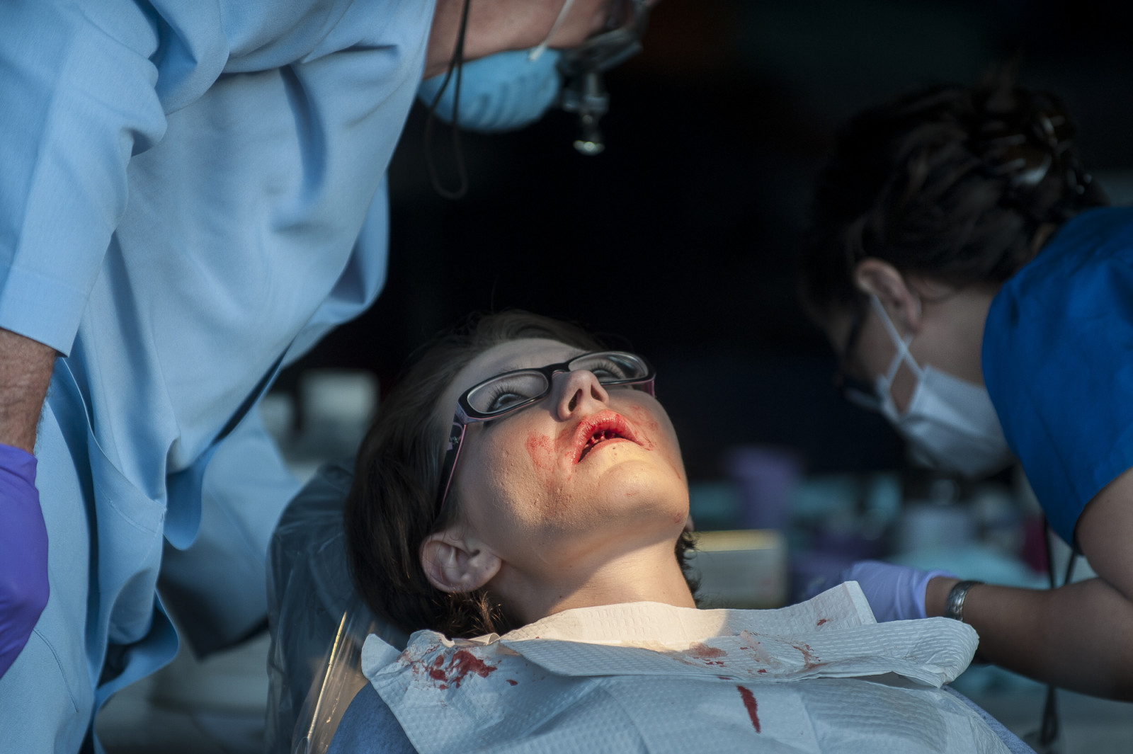 A young woman stares upward as a dentist works on removing all of her teeth at the 16th annual Remote Area Medical (RAM), clinic in Wise, Virginia. Photo: Pete Marovich/Bloomberg